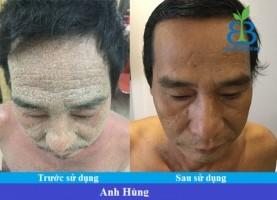 Bệnh nhân vẩy nến Tạ Phi Hùng- TP.HCM