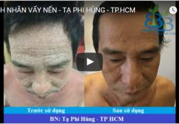 Cảm nhận bệnh nhân vẩy nến Tạ Phi Hùng – TPHCM