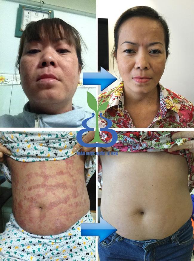 Cảm nhận của chị Nguyễn Thị Thúy Hằng TP.HCM sau khi sử dụng Kem vẩy nến