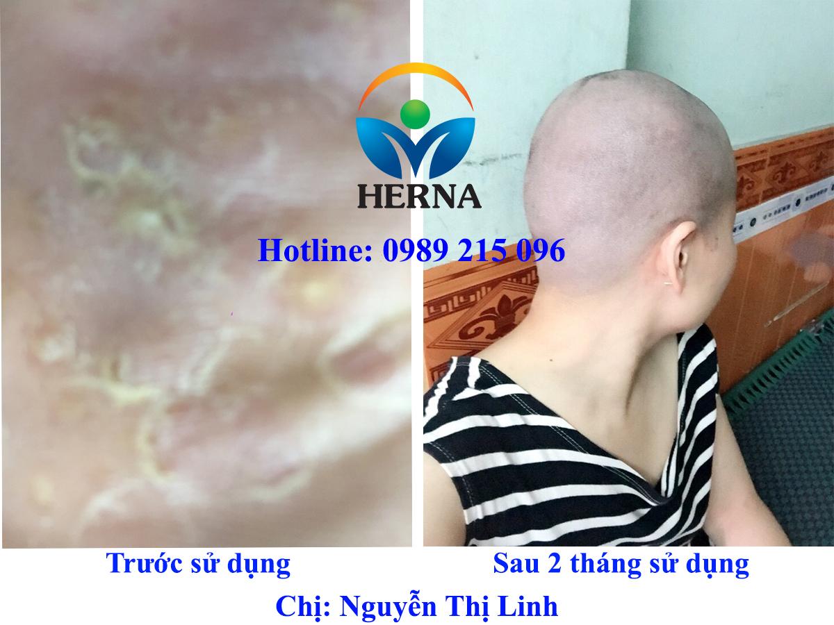 Cảm nhận của chị Linh, Quảng Ninh