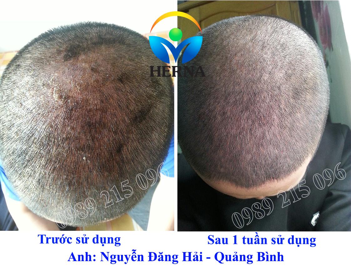 Bệnh nhân vẩy nến Nguyễn Đăng Hải