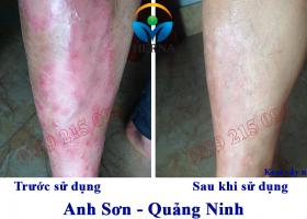Hình ảnh anh Sơn, Quảng Ninh trước và sau khi sử dụng Kem vẩy nến Herna