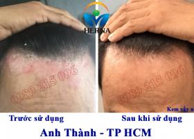 Hình ảnh trước và sau khi sử dụng Kem vẩy nến Herna của anh Thành, TP Hồ Chí Minh