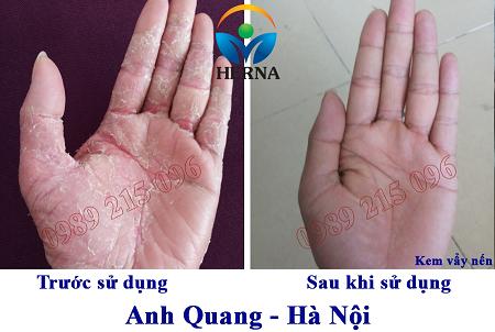Câu chuyện làm lành viêm da cơ địa của anh Quang, Hà Nội